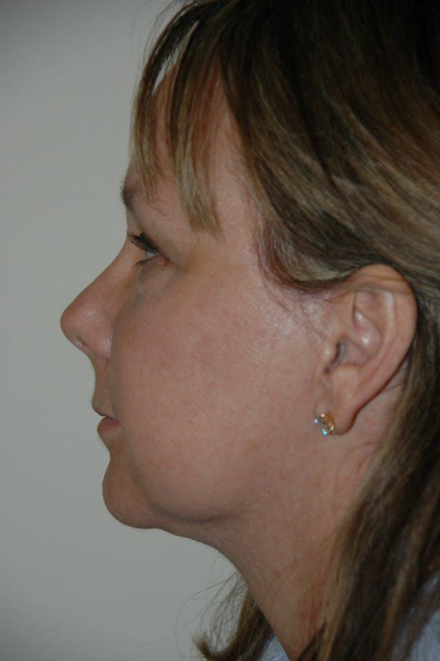 Facelift Gallery - Patient 53599863 - Image 6