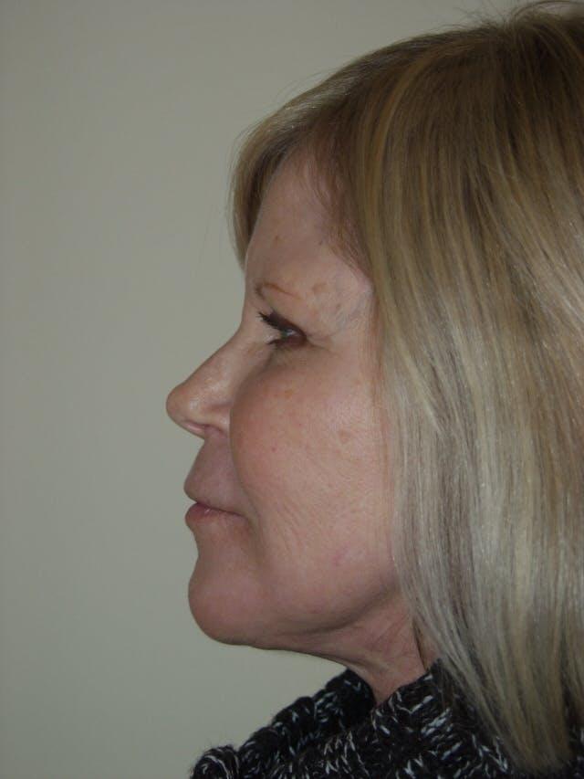Facelift Gallery - Patient 53599865 - Image 4