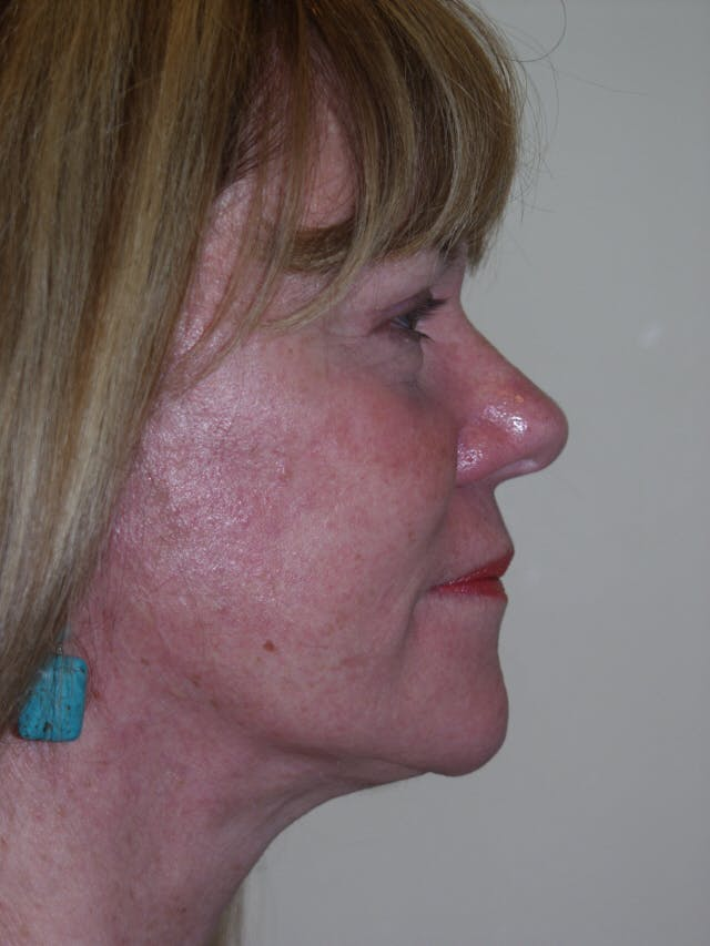 Facelift Gallery - Patient 53599880 - Image 6