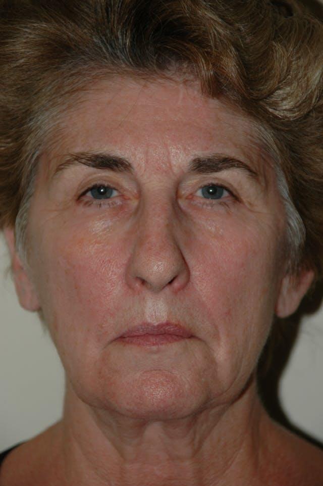 Facelift Gallery - Patient 53599882 - Image 1
