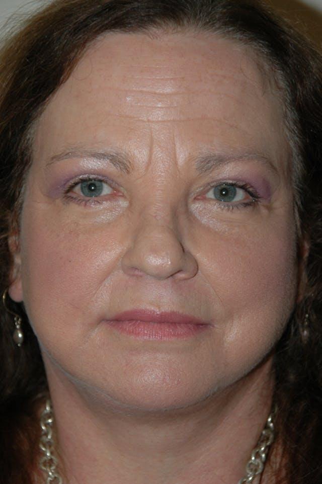 Facelift Gallery - Patient 53599883 - Image 2