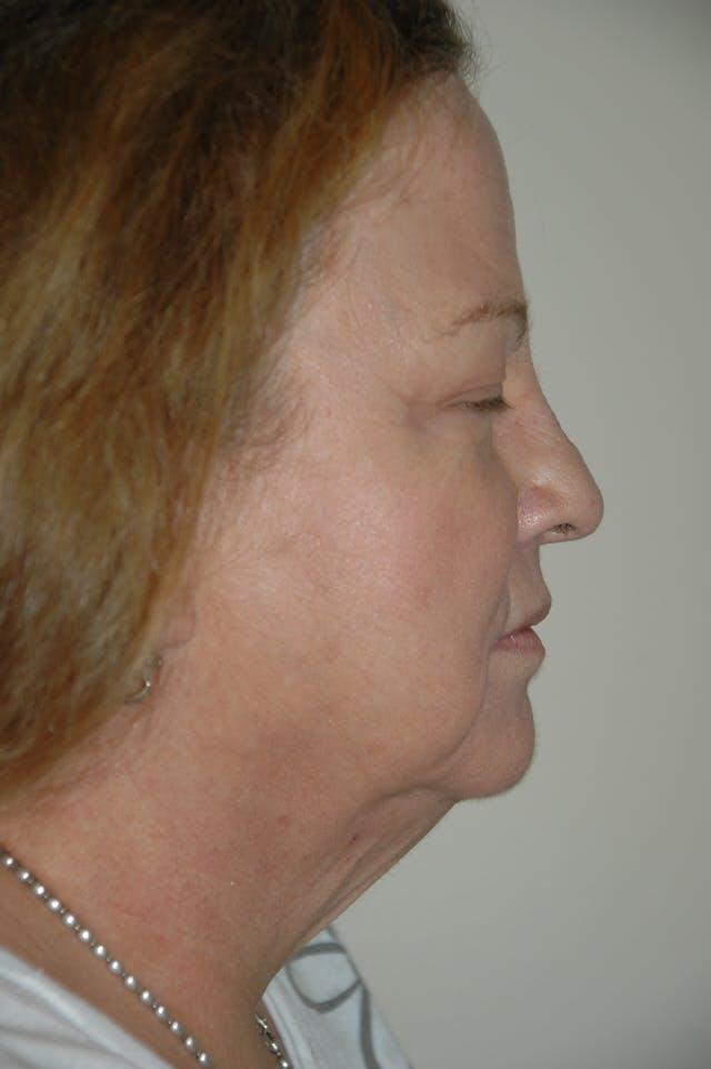 Facelift Gallery - Patient 53599883 - Image 3