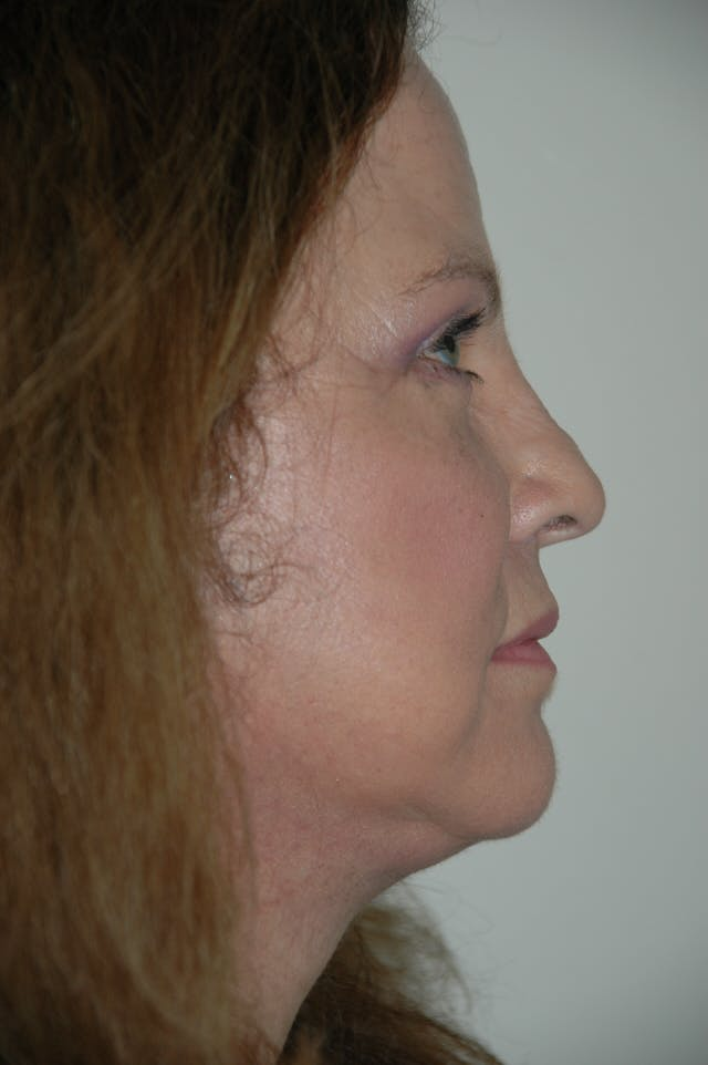 Facelift Gallery - Patient 53599883 - Image 4