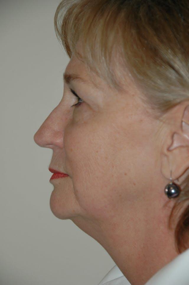 Facelift Gallery - Patient 53599885 - Image 5