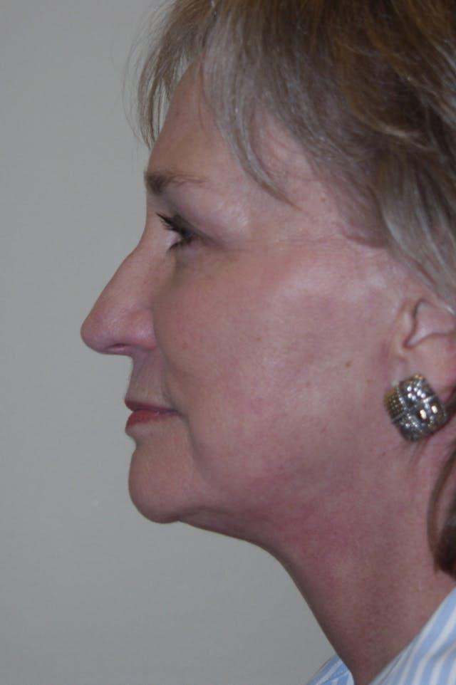 Facelift Gallery - Patient 53599885 - Image 6