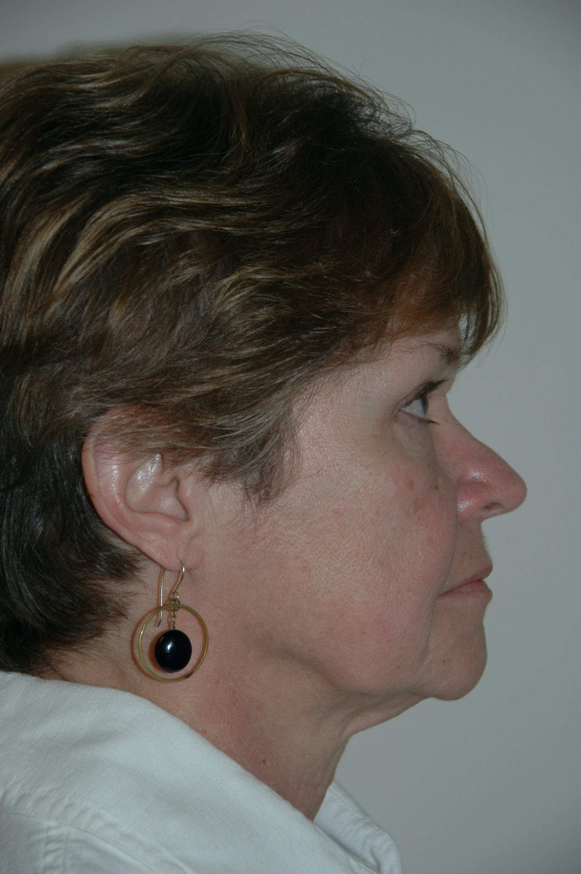 Facelift Gallery - Patient 53599891 - Image 3