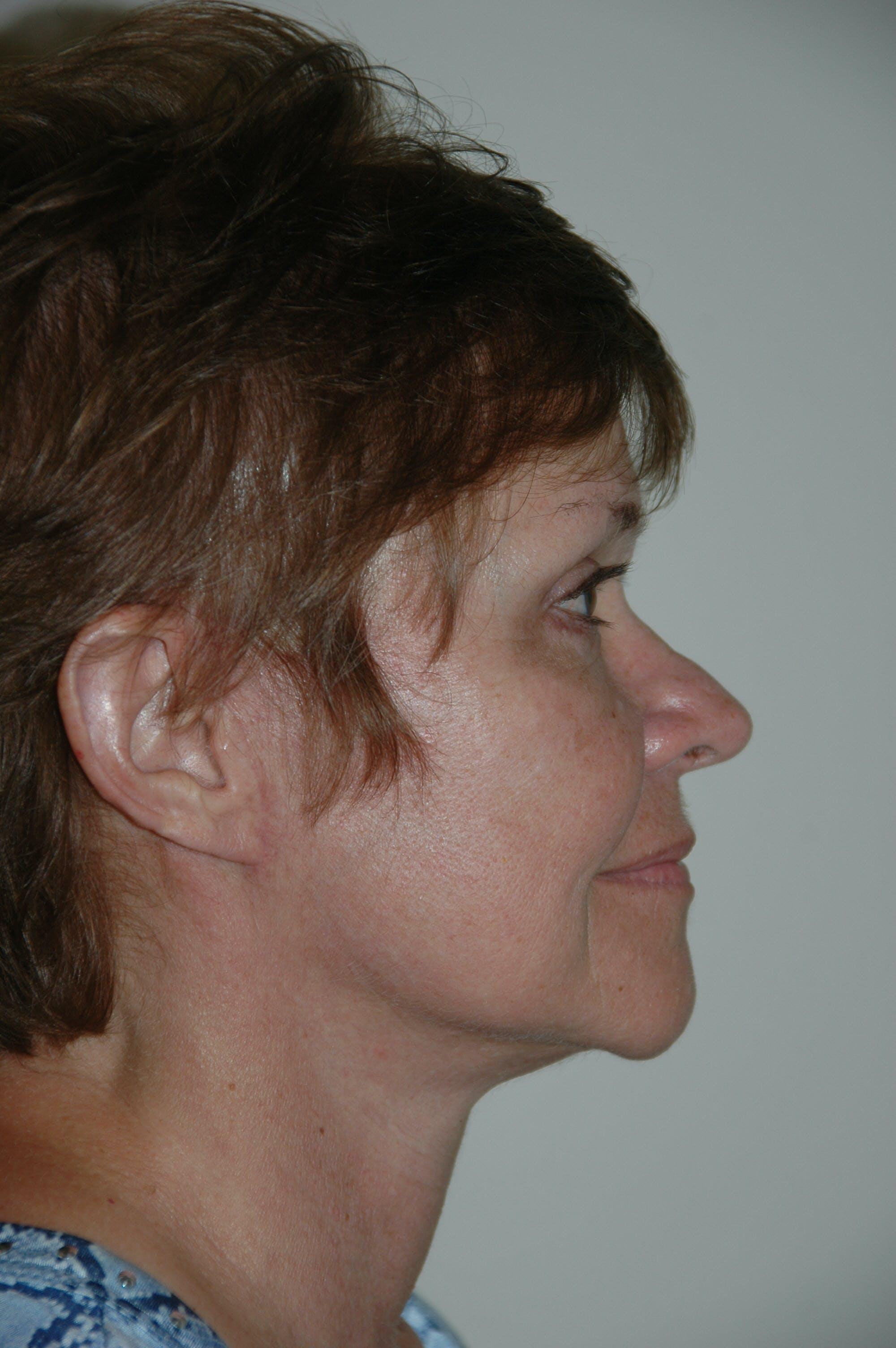 Facelift Gallery - Patient 53599891 - Image 4