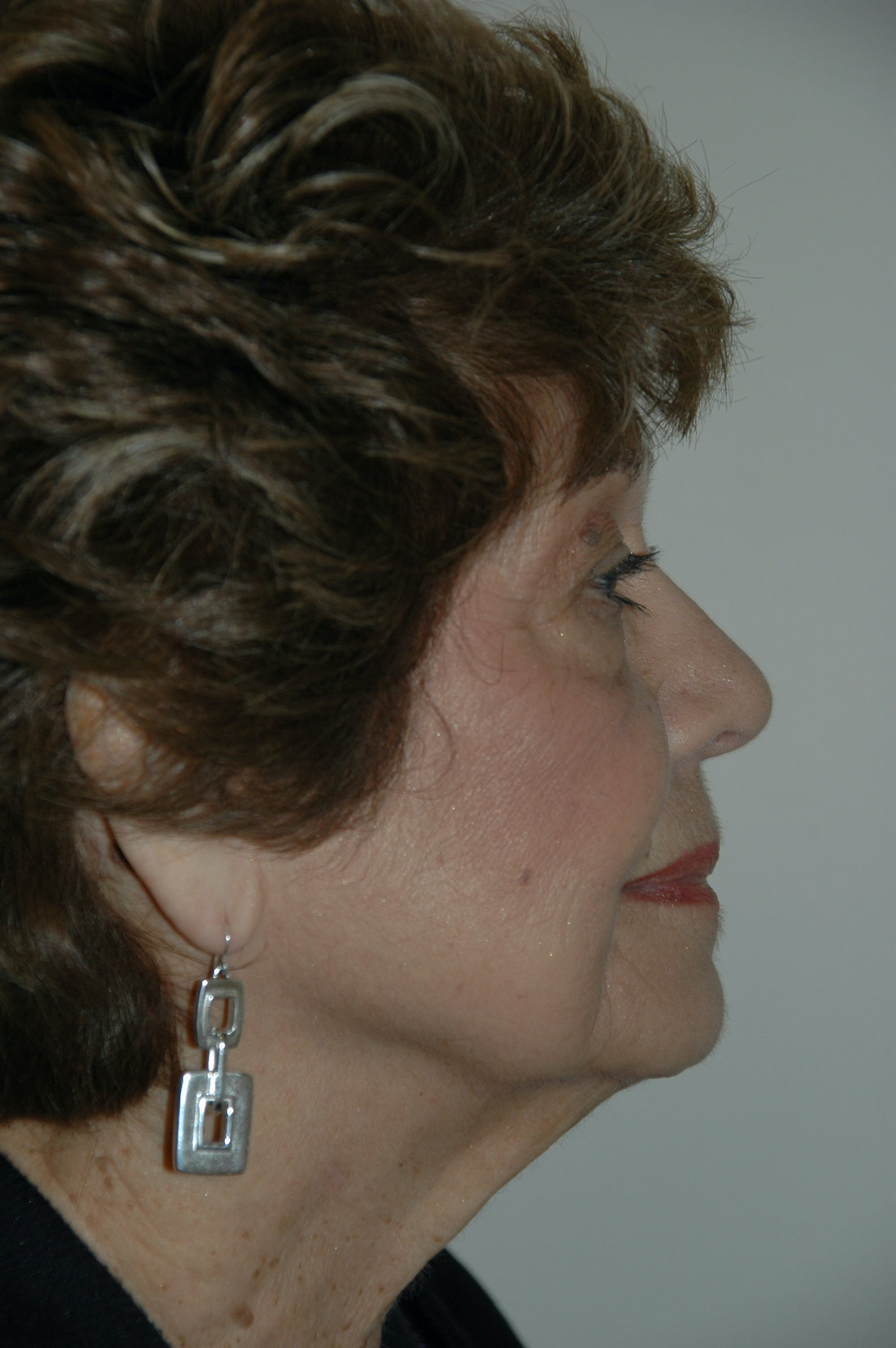 Facelift Gallery - Patient 53599906 - Image 3