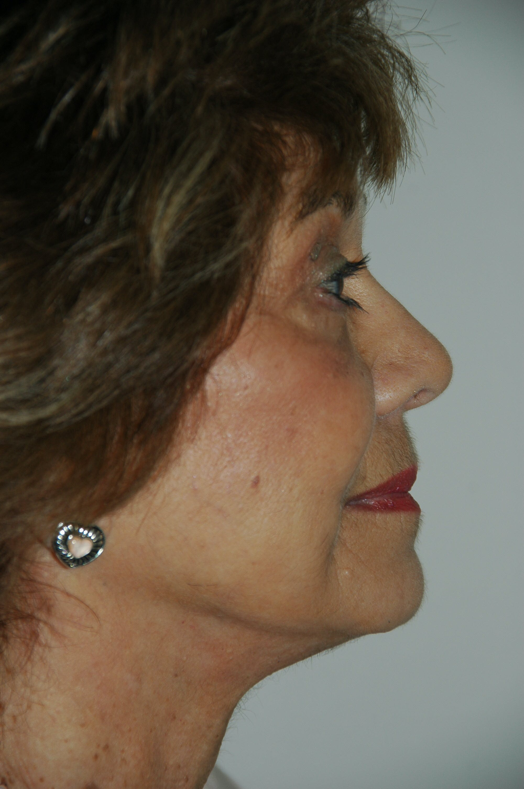 Facelift Gallery - Patient 53599906 - Image 4