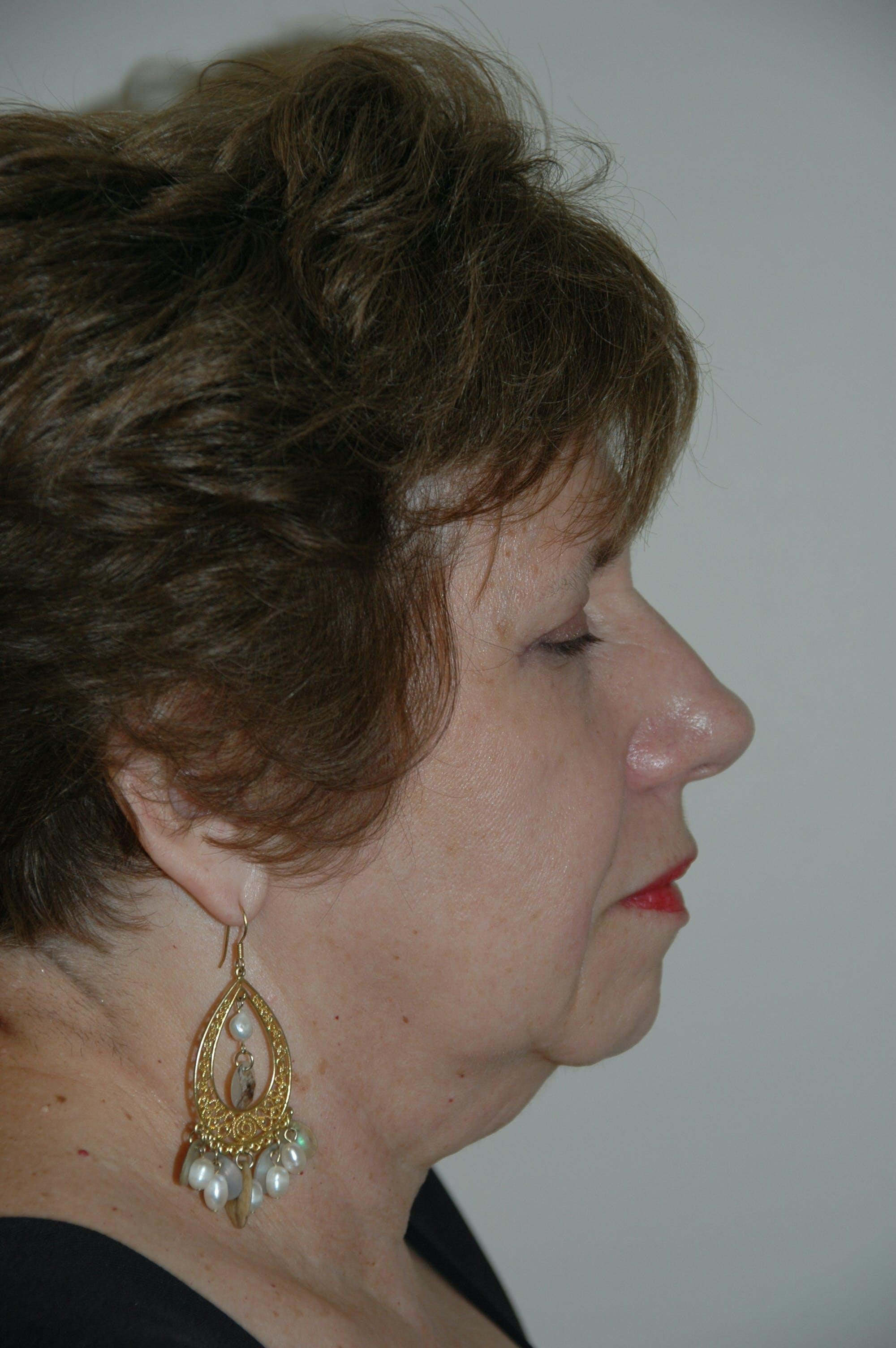 Facelift Gallery - Patient 53599908 - Image 3