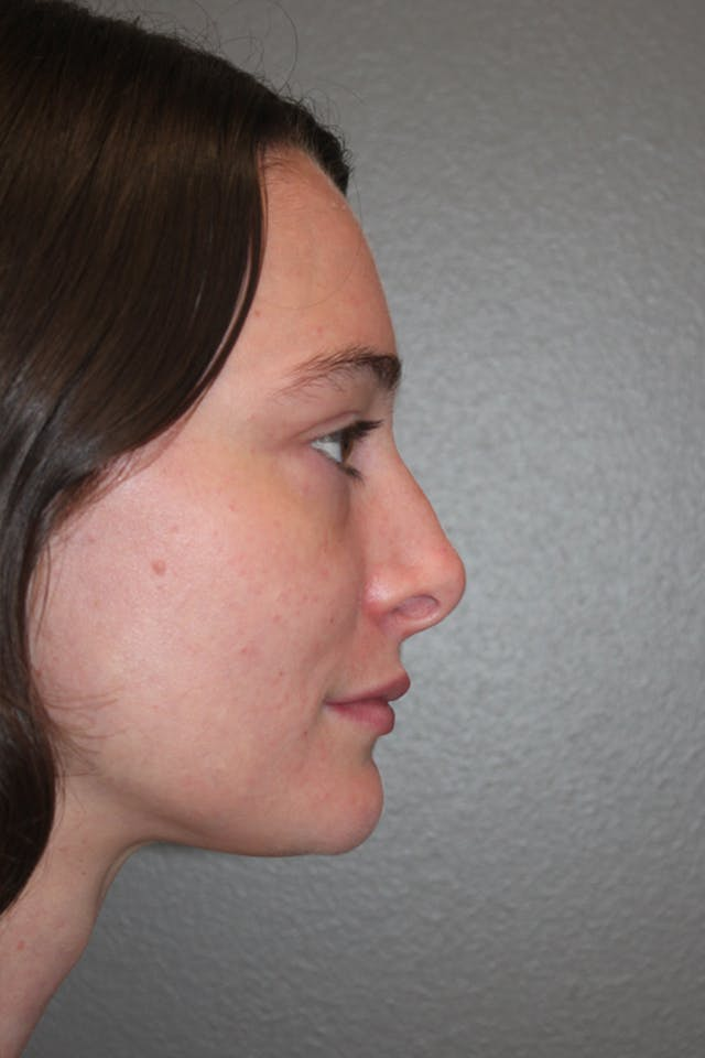 Revision Rhinoplasty Gallery - Patient 53599942 - Image 1