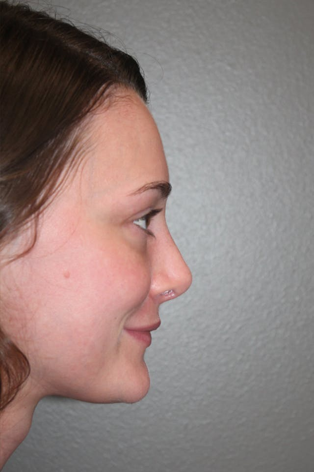 Revision Rhinoplasty Gallery - Patient 53599942 - Image 2