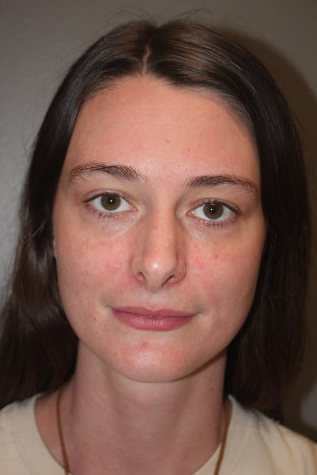 Revision Rhinoplasty Gallery - Patient 53599942 - Image 3