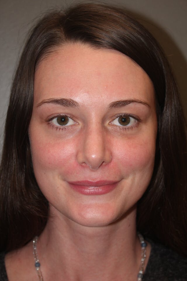 Revision Rhinoplasty Gallery - Patient 53599942 - Image 4