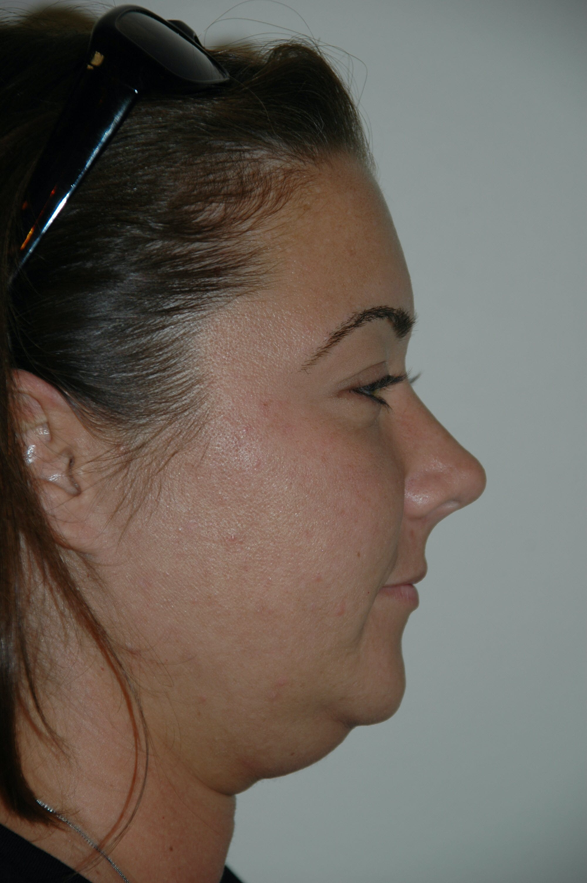 Submental Liposuction Gallery - Patient 53599947 - Image 3