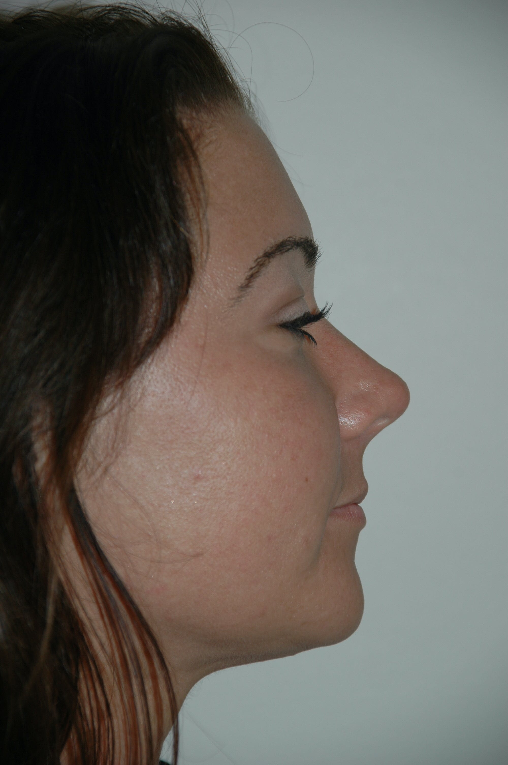 Submental Liposuction Gallery - Patient 53599947 - Image 4