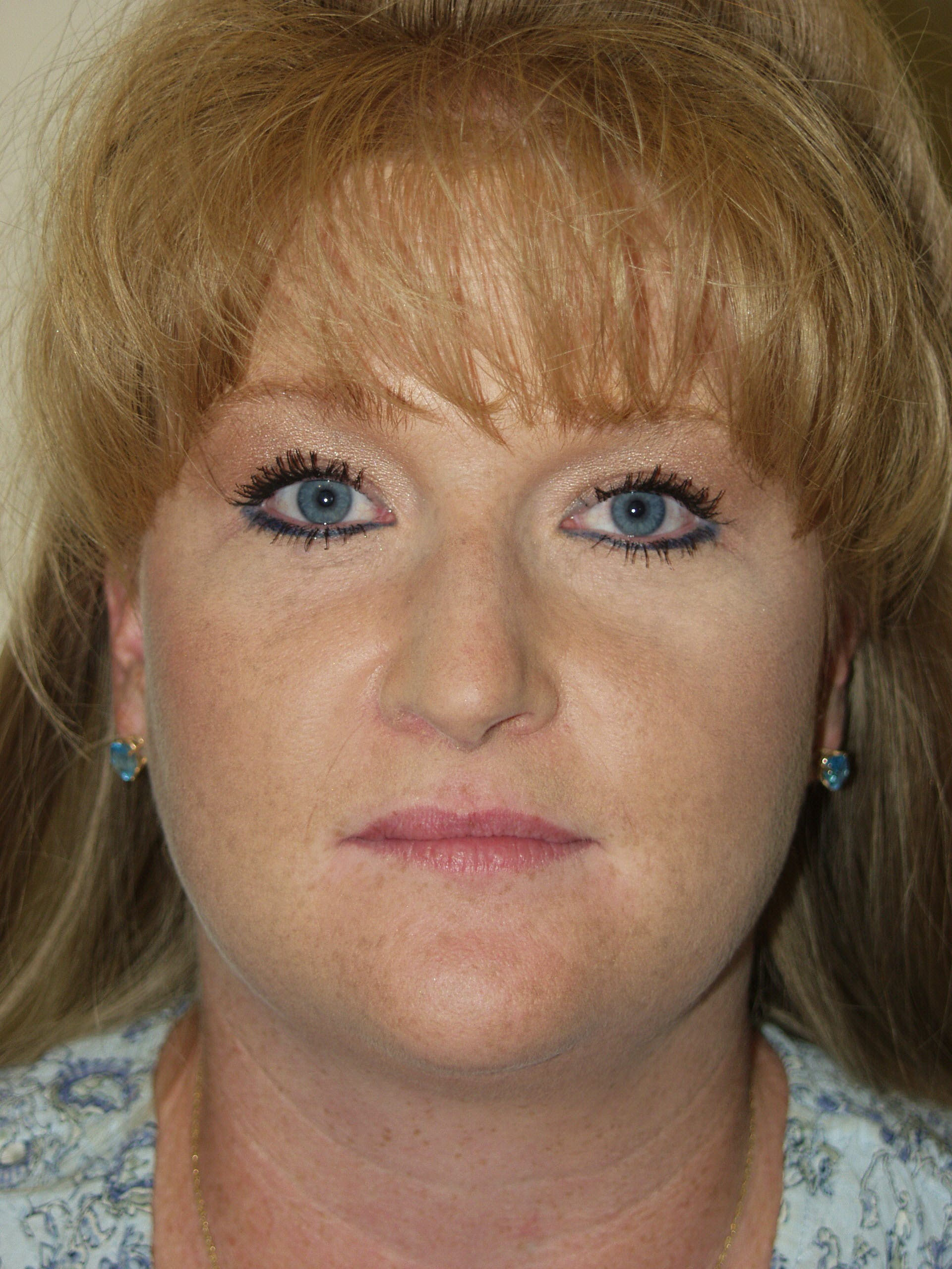 Submental Liposuction Gallery - Patient 53599948 - Image 1