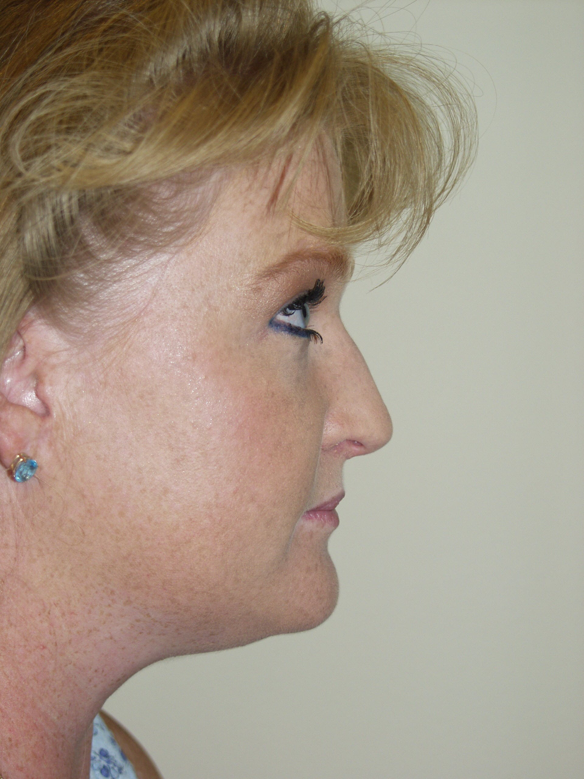 Submental Liposuction Gallery - Patient 53599948 - Image 3