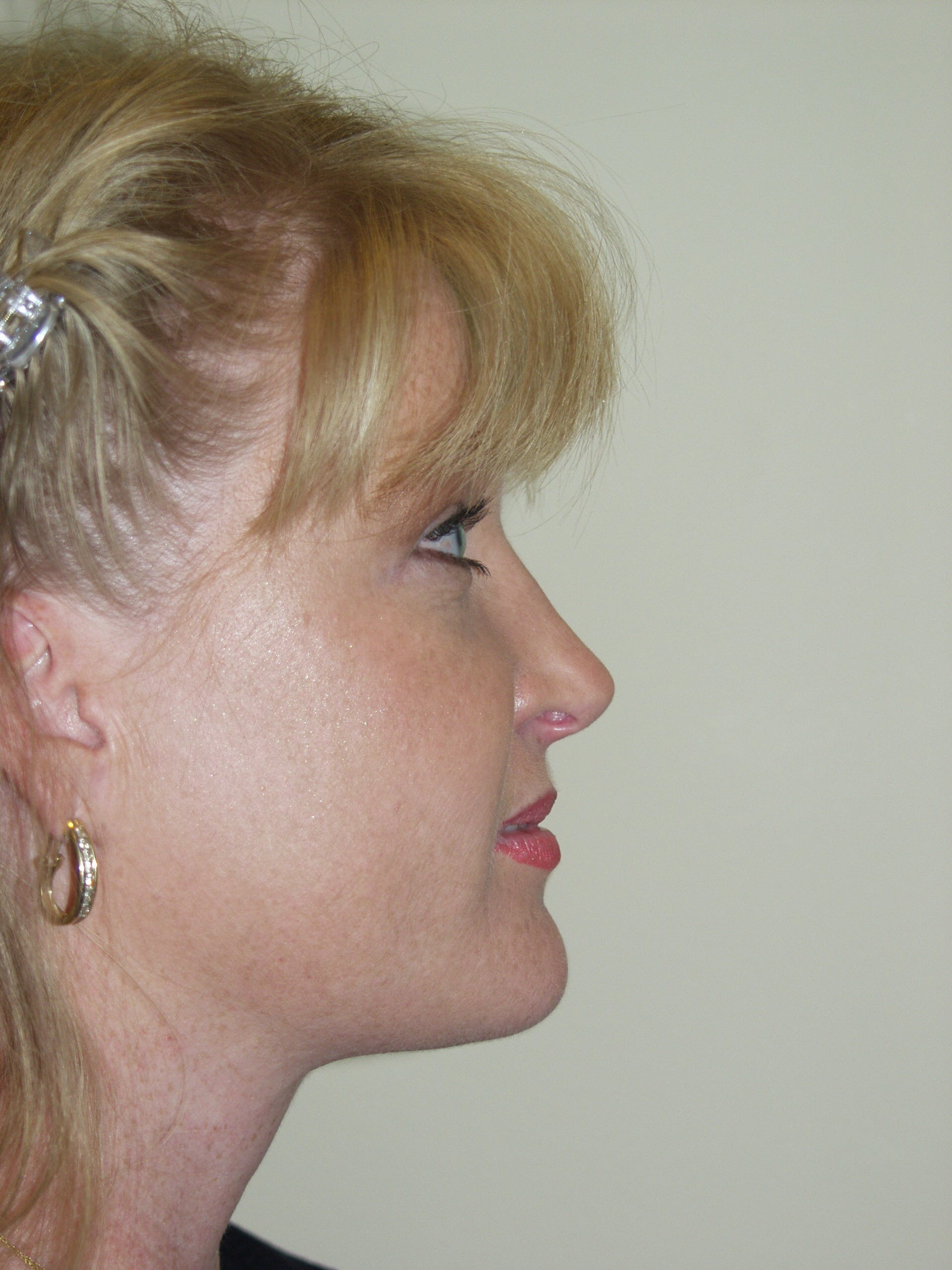 Submental Liposuction Gallery - Patient 53599948 - Image 4