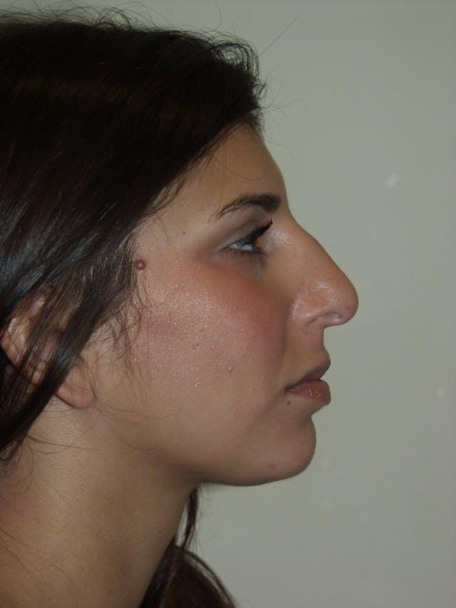 Rhinoplasty Gallery - Patient 53820292 - Image 1