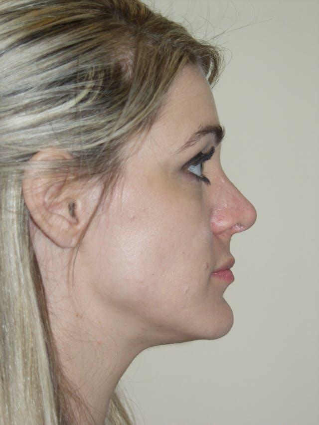 Rhinoplasty Gallery - Patient 53820352 - Image 2