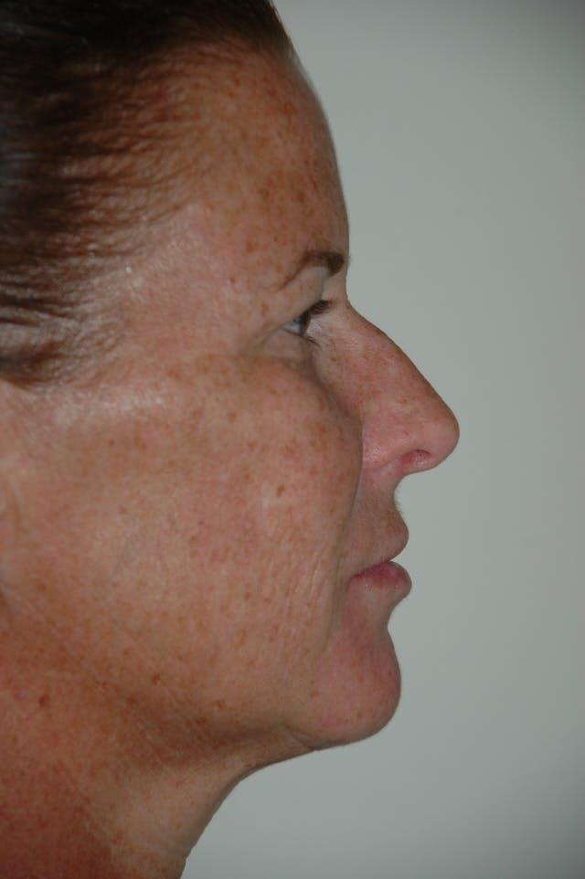 Rhinoplasty Gallery - Patient 53820353 - Image 1