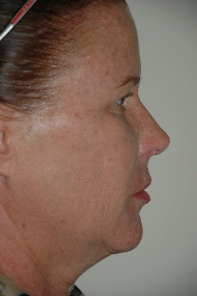 Rhinoplasty Gallery - Patient 53820353 - Image 2