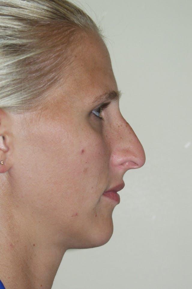 Rhinoplasty Gallery - Patient 53821279 - Image 1