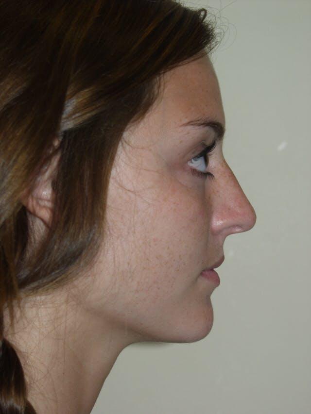 Rhinoplasty Gallery - Patient 53821324 - Image 1