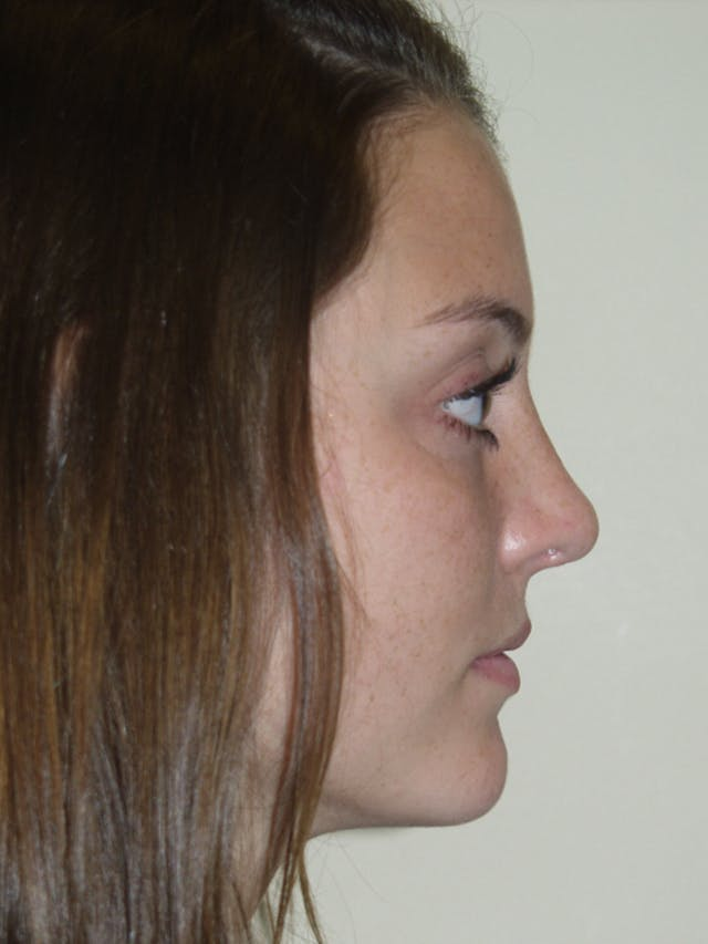 Rhinoplasty Gallery - Patient 53821324 - Image 2