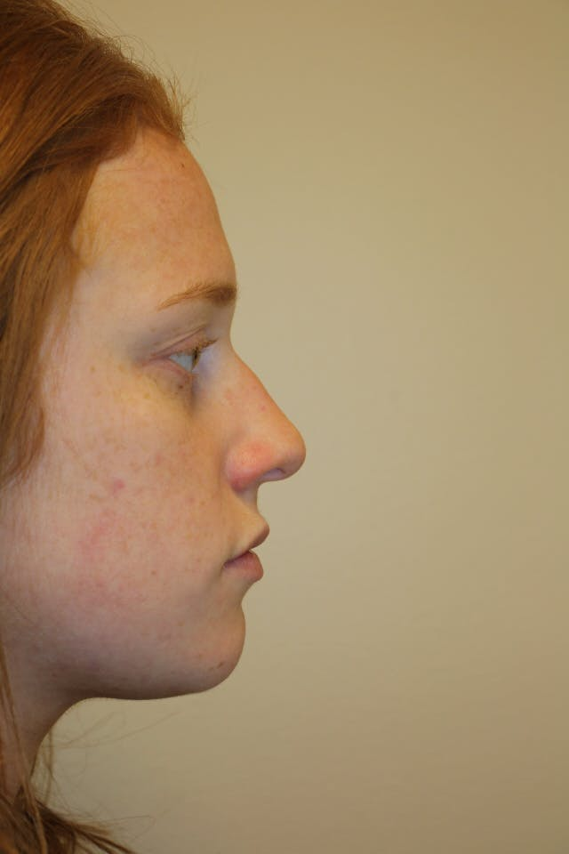 Rhinoplasty Gallery - Patient 53822984 - Image 1