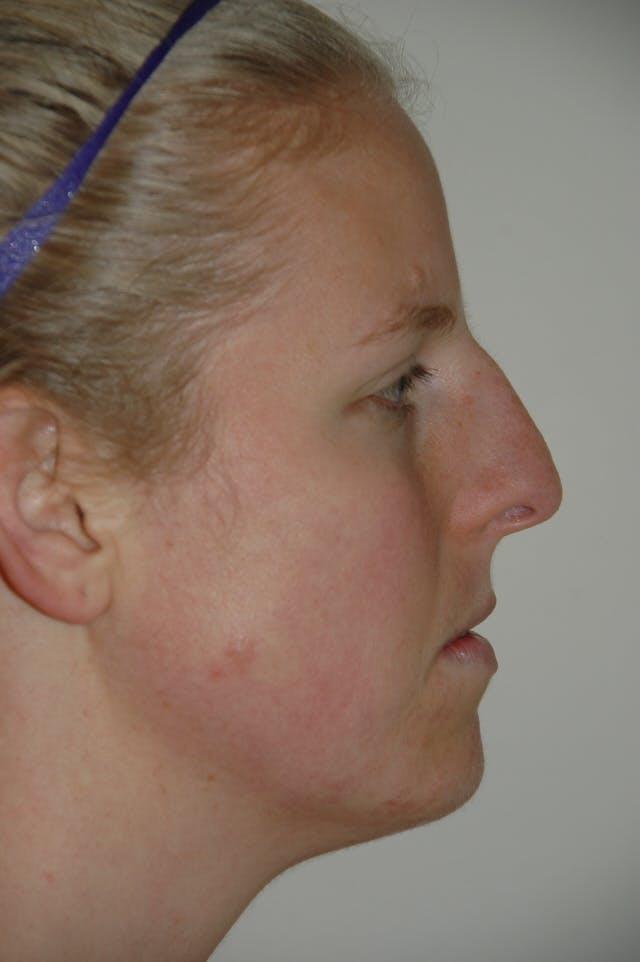 Rhinoplasty Gallery - Patient 53823341 - Image 1