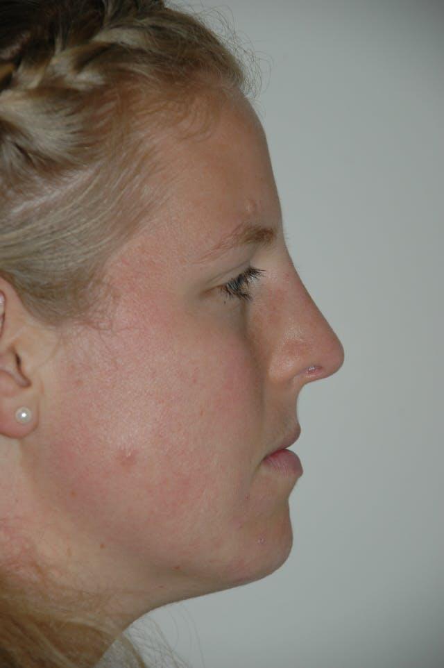 Rhinoplasty Gallery - Patient 53823341 - Image 2