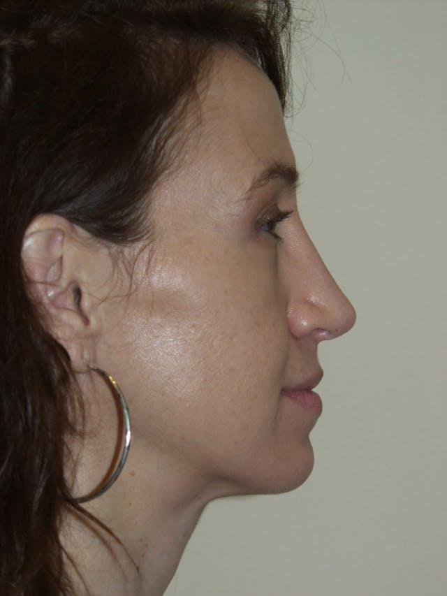 Rhinoplasty Gallery - Patient 53823343 - Image 2
