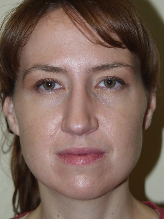 Rhinoplasty Gallery - Patient 53823343 - Image 3