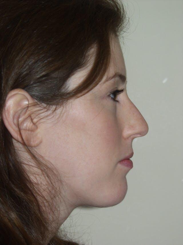 Rhinoplasty Gallery - Patient 53824005 - Image 1