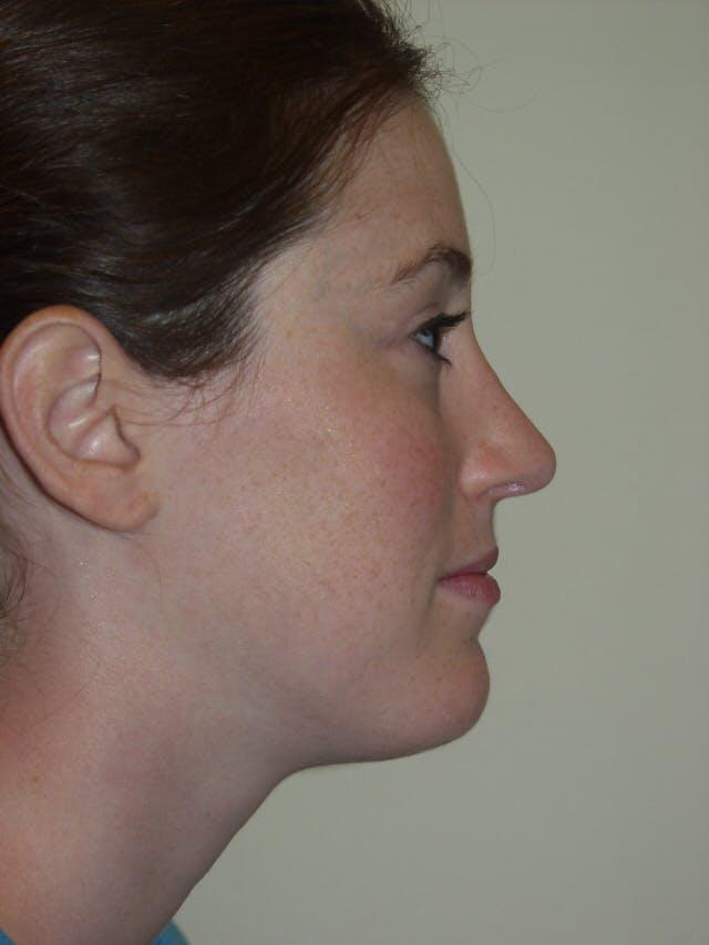 Rhinoplasty Gallery - Patient 53824005 - Image 2