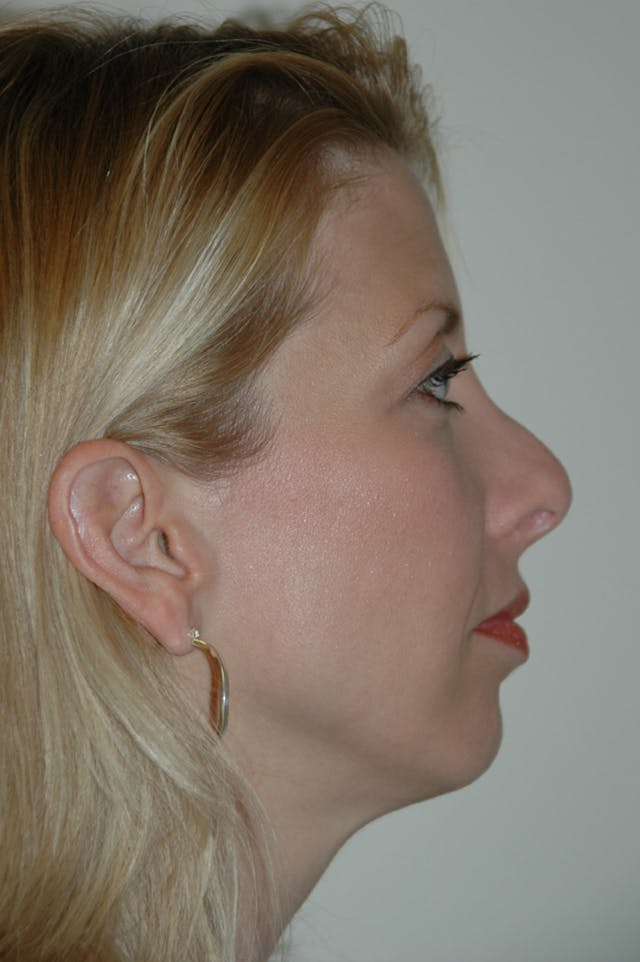 Revision Rhinoplasty Gallery - Patient 54673300 - Image 1