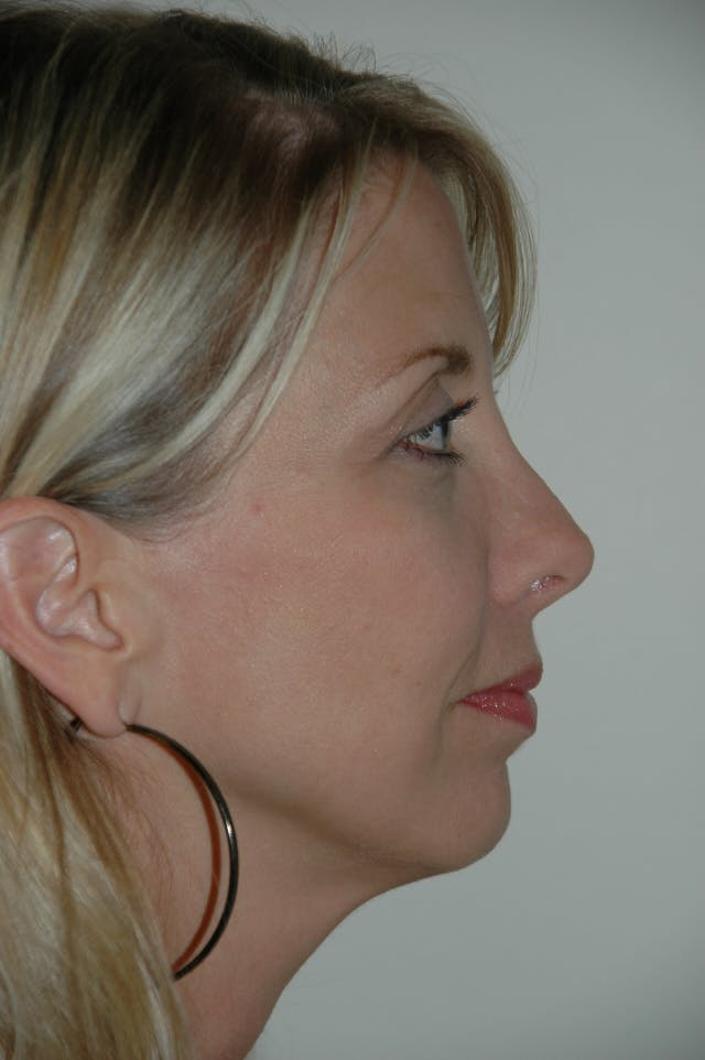 Revision Rhinoplasty Gallery - Patient 54673300 - Image 2