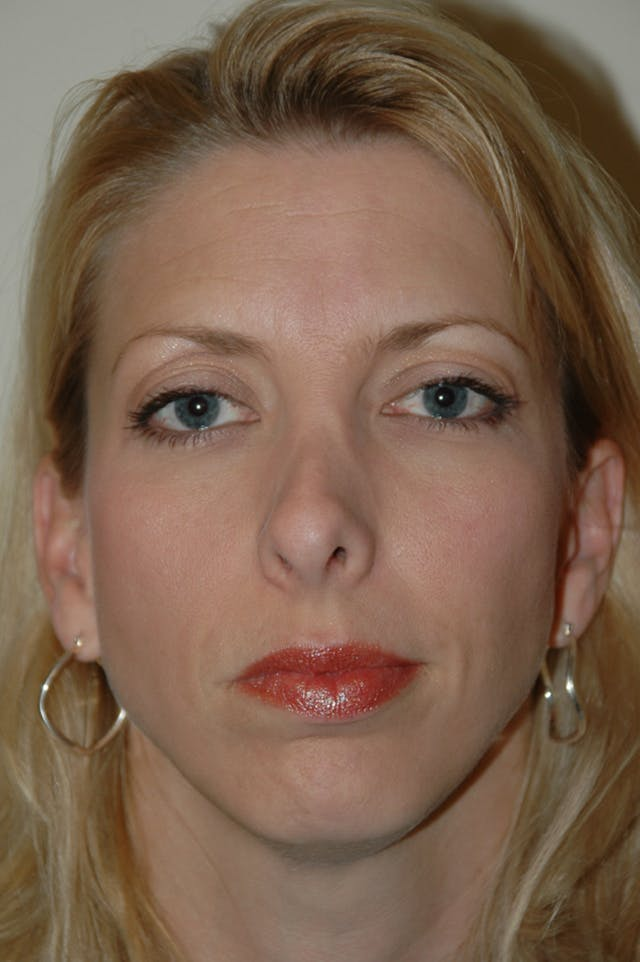 Revision Rhinoplasty Gallery - Patient 54673300 - Image 3