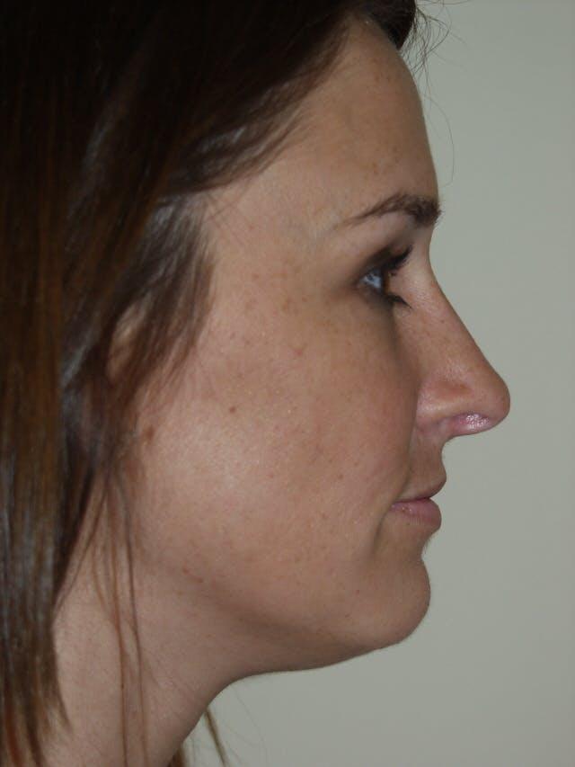 Rhinoplasty Gallery - Patient 53824148 - Image 2