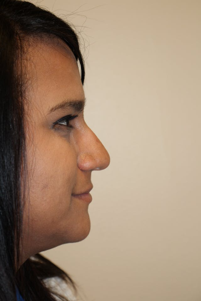 Rhinoplasty Gallery - Patient 53824210 - Image 1