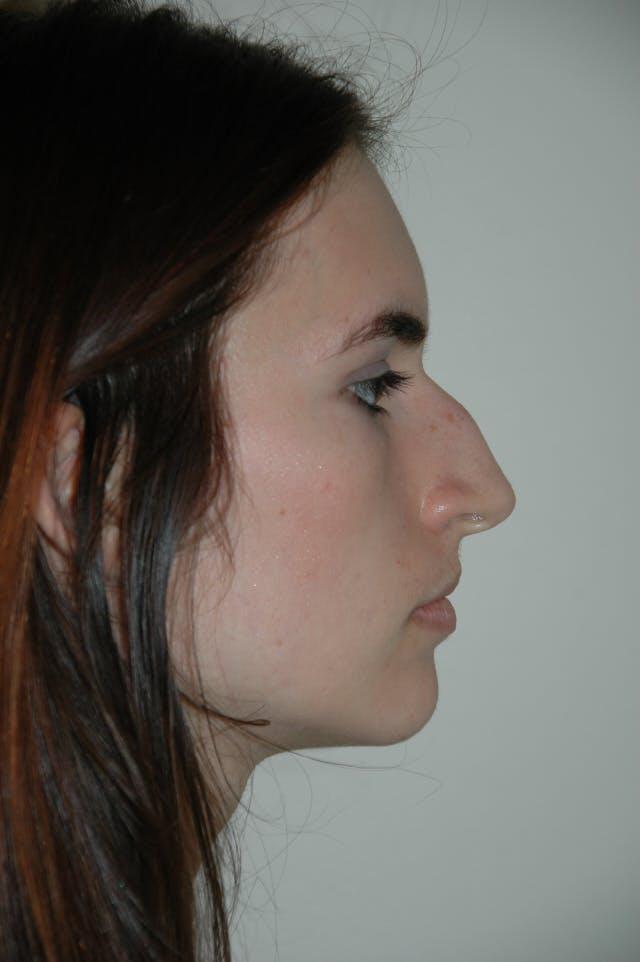 Rhinoplasty Gallery - Patient 53824324 - Image 1