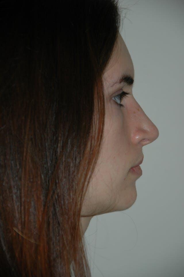 Rhinoplasty Gallery - Patient 53824324 - Image 2
