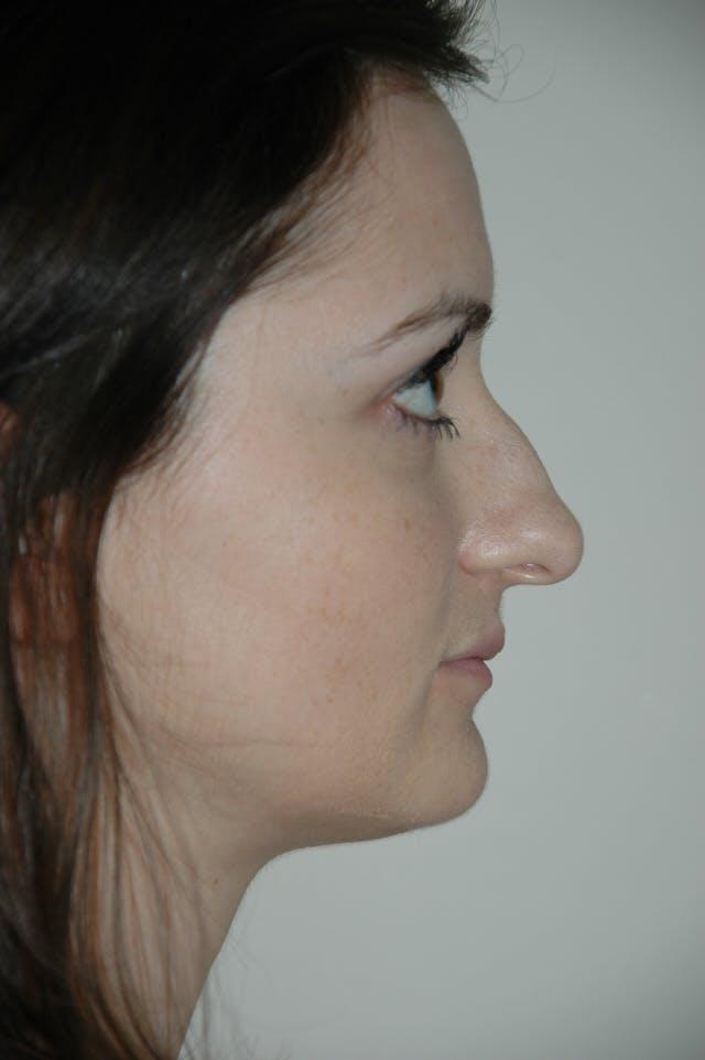 Rhinoplasty Gallery - Patient 53824457 - Image 1