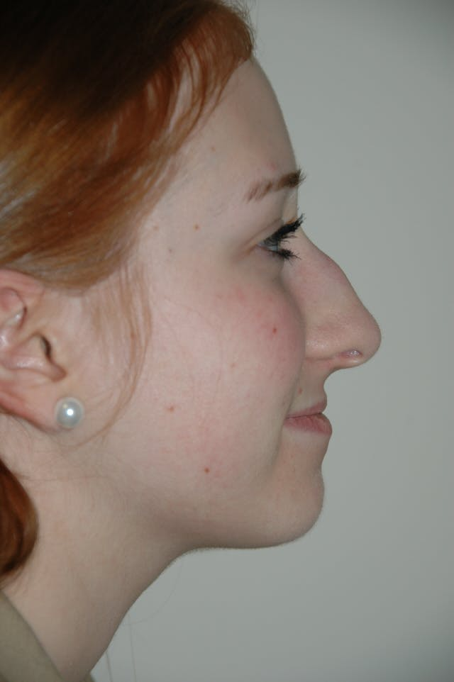 Rhinoplasty Gallery - Patient 53824458 - Image 1