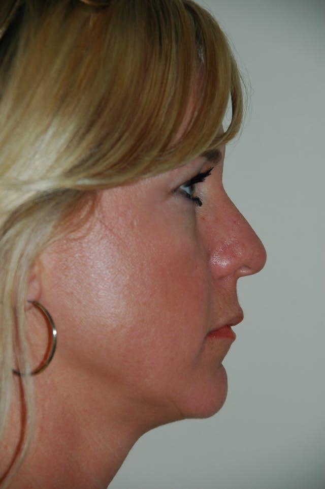 Rhinoplasty Gallery - Patient 53824531 - Image 1