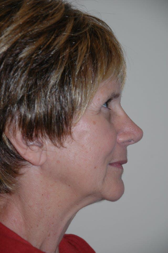 Rhinoplasty Gallery - Patient 53824586 - Image 2
