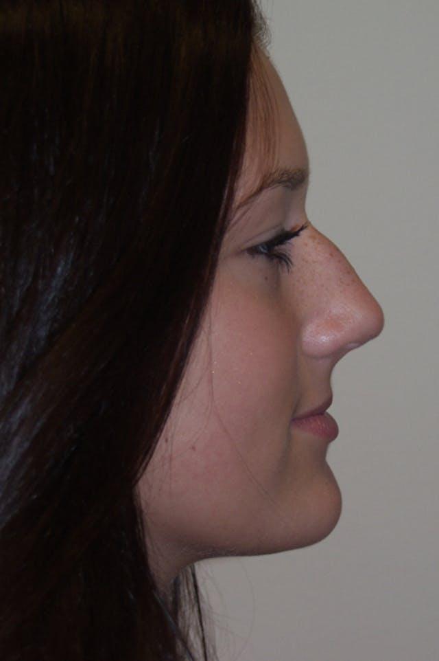 Rhinoplasty Gallery - Patient 53824782 - Image 1