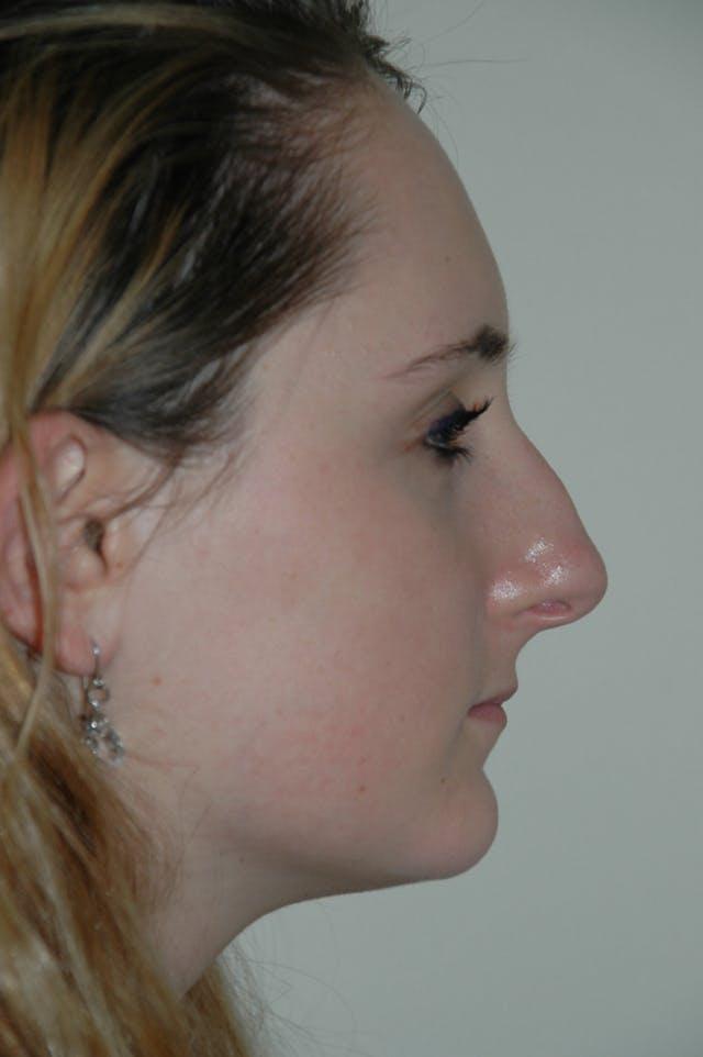 Rhinoplasty Gallery - Patient 53824882 - Image 1